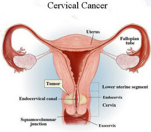 Cervical-Cancer-Picture